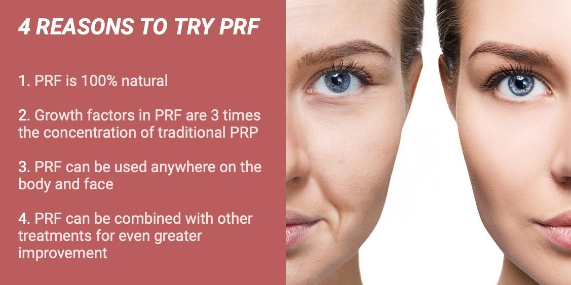 reasons to try PRF