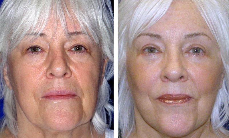 clearlift facelift