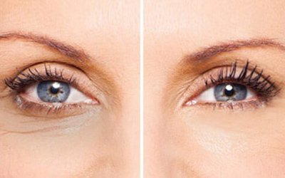 eMatrix Skin Tightening and Rejuvenation around the Eyes