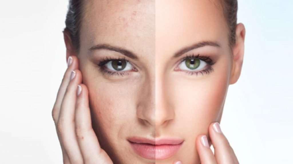 stem cells facelift