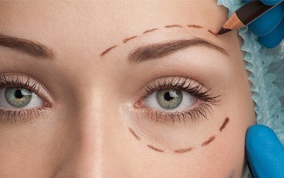 Non-Surgical Blepharoplasty for Droopy and Hooded Eyelids