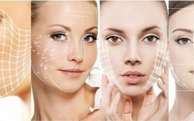 What is Thermolifting skin treatment ?