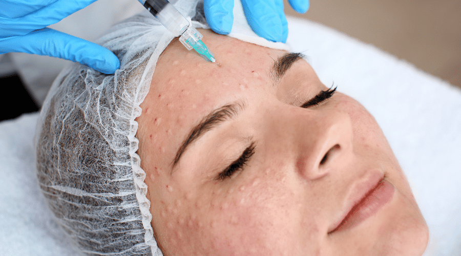 Biorevitalisation  – Prevent ageing changes and rehydrate your skin